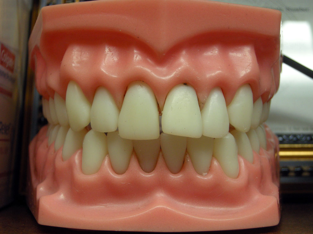Fake teeth on the counter at Dr. Miraglia's office in Rochester, New York