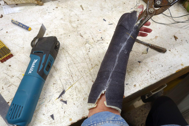 Cutting Peggi's wrist cast off in March 2020