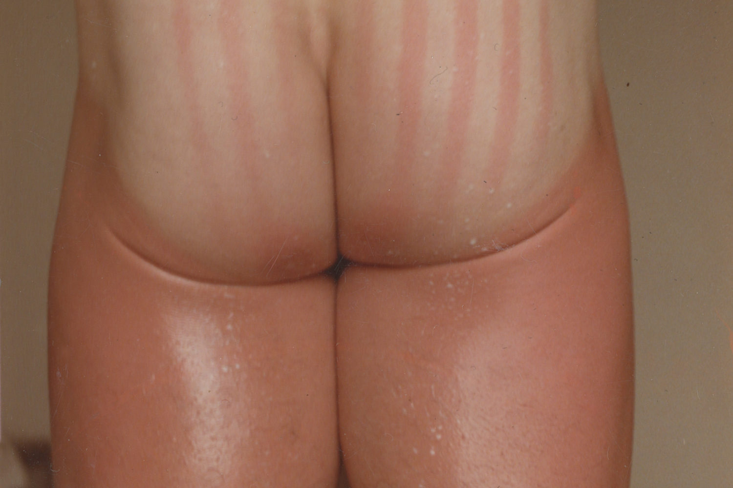 Sunburn from snorkeling in Cartagena, Columbia mid 80s. Photo by Peggi